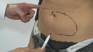 Kamila Nyvltova on SlimLipo Laser Liposuction
